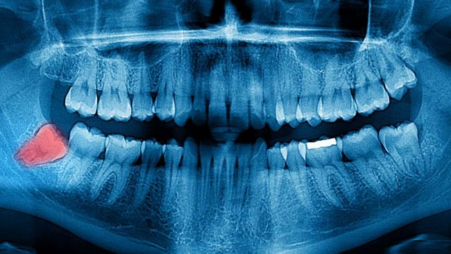 Wisdom tooth smells bad - Best Dental in Houston, Texas