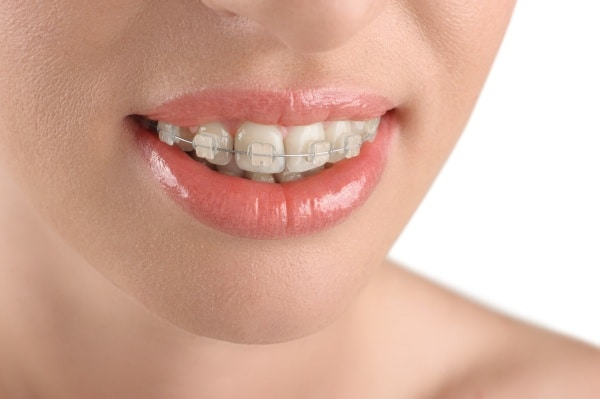 Ceramic Braces Houston, TX | Best Dental
