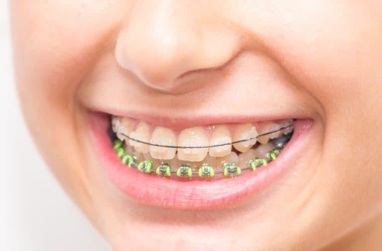 Clear Ceramic Braces Houston, TX | Best Dental