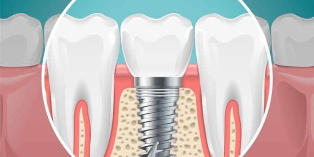 Dental Implant Procedure - Best Dental in Houston