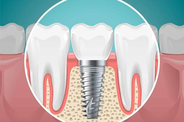 Dental Implant Procedure - Best Dental in Houston