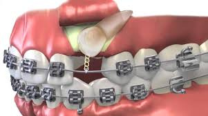 Impacted canines in Houston, TX | Best Dental