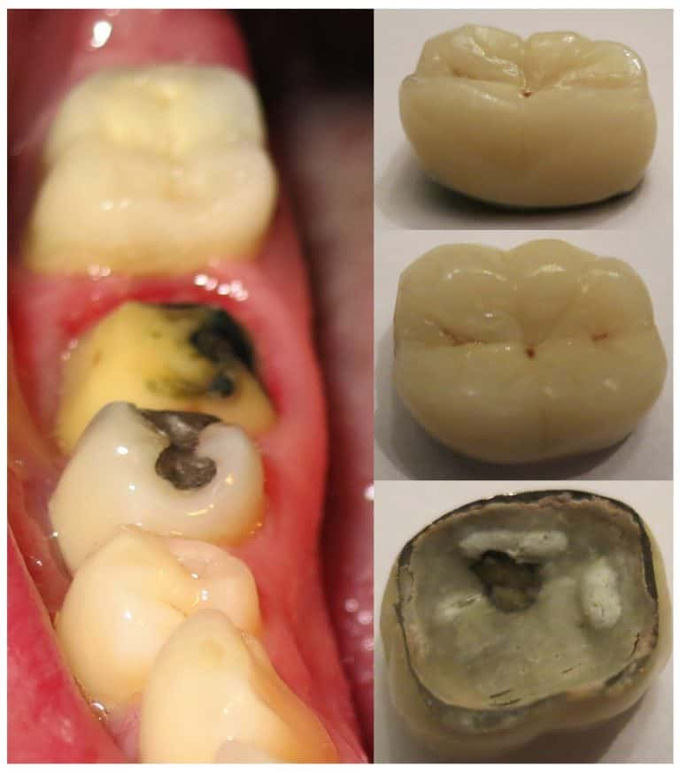 Loose Dental Crown: Causes and Solutions - Best Dental in Houston, Texas