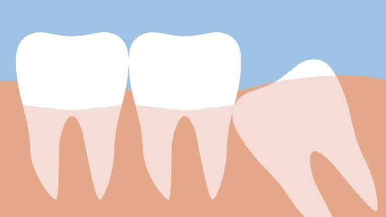 Can wisdom teeth cause a sore throat?