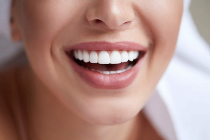 What Happens To Teeth Underneath Dental Veneers?