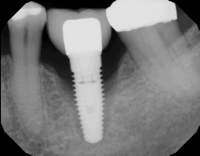Can a failed dental implant be replaced? - Best Dental