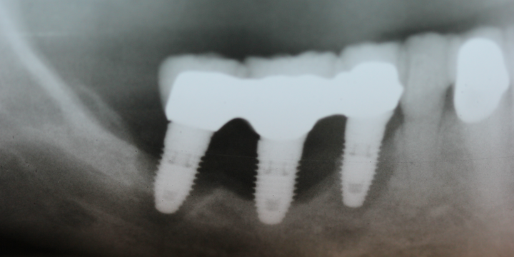 Can failed dental implants be replaced?