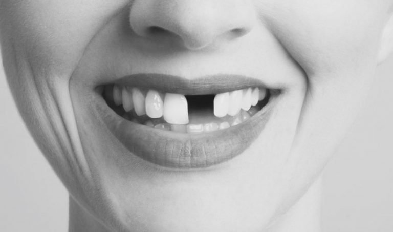 How to fix a missing front tooth - Best Dental in Houston, TX