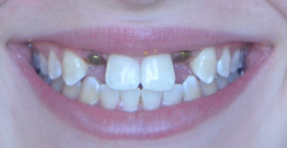 How to fix a missing front tooth