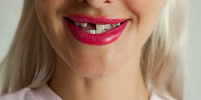 how to fix a missing front tooth | Best Dental in Houston, TX