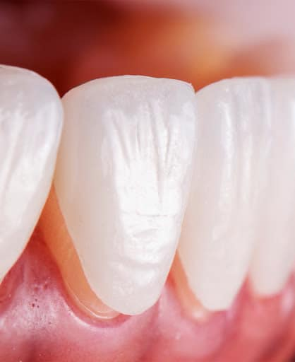 Veneers after Invisalign | Best Dental in Houston, TX