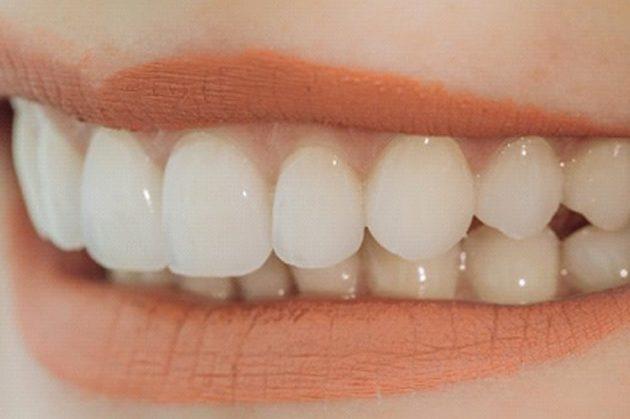 Teeth bondings VS Veneers | Best Dental in Houston, TX