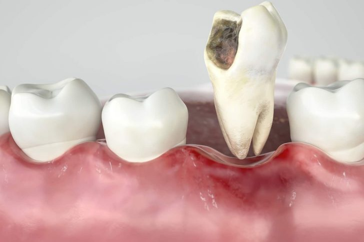 Dentist Couldn't Get My Tooth Out | Best Dental