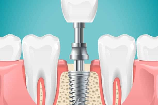Cost Of A Single Dental Implant | Best Dental