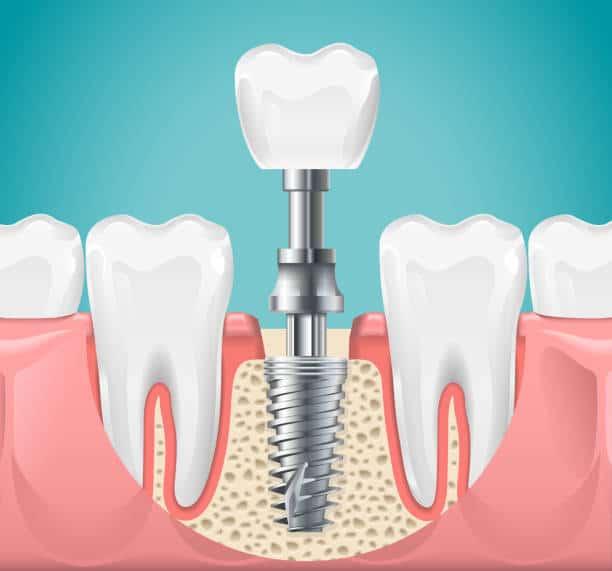 Cost Of A Single Dental Implant   Best Dental