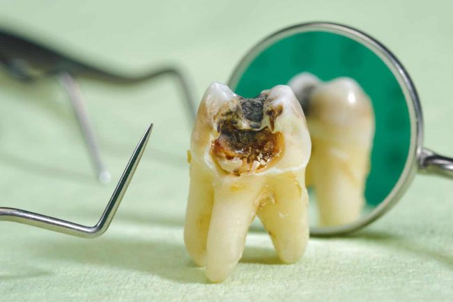 Rotten Teeth - Causes, Symptoms, and Treatment   Best Dental