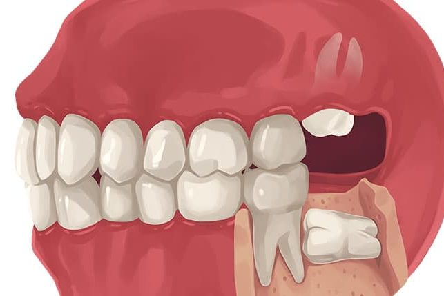 Does It Hurt TO Get Your Wisdom Teeth Removed? | Best Dental in Houston, TX