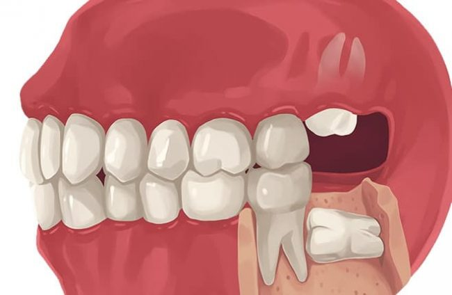 Does It Hurt TO Get Your Wisdom Teeth Removed?   Best Dental in Houston, TX