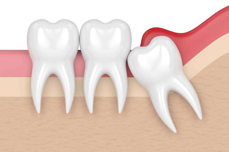 Wisdom Tooth Never Came Out | Best Dental