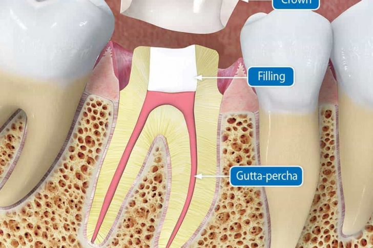 How Quickly Should I Get A Crown After A Root Canal? - Best Dental
